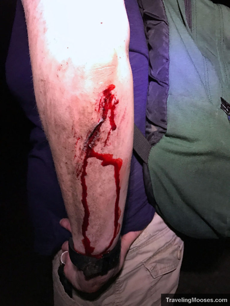 Laceration on arm